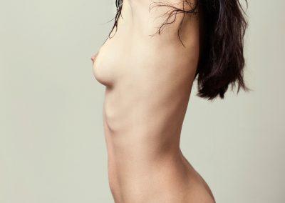 Chirurgie de l'hypertrophie mammaire